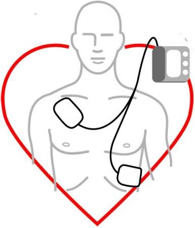 Bruk av hjertestarter